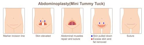 abdominoplasty,mini tummy tuck -img-blog