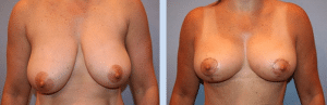 Before and After Breast Reduction By Dr. Taranow