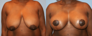 Breast Lift Before and After photos by Dr. Taranow