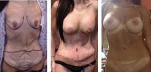 Mommy Makeover Before and After Photos