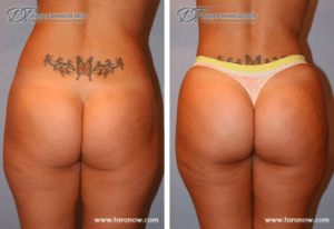 BBL by Dr. Taranow Before and After