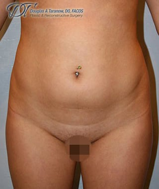 NY liposuction before and after images