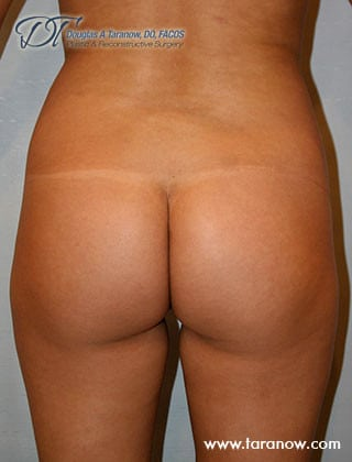 before Brazilian buttock lift - before image