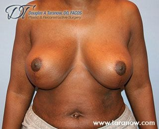 Patient after image of breast augmentation in NYC