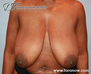 Patient before undergoing a breast lift in New York, NY