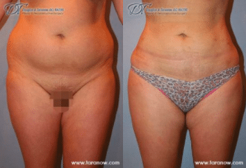 The Advantages Of Getting Liposuction In The Winter Dr Douglas Taranow