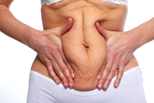Woman fat belly. Overweight and weight loss concept-img-blog