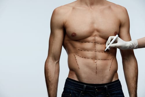 Closeup Of Young Man Fit Torso With Surgical Lines On His Body Before Beauty Operation-img-blog