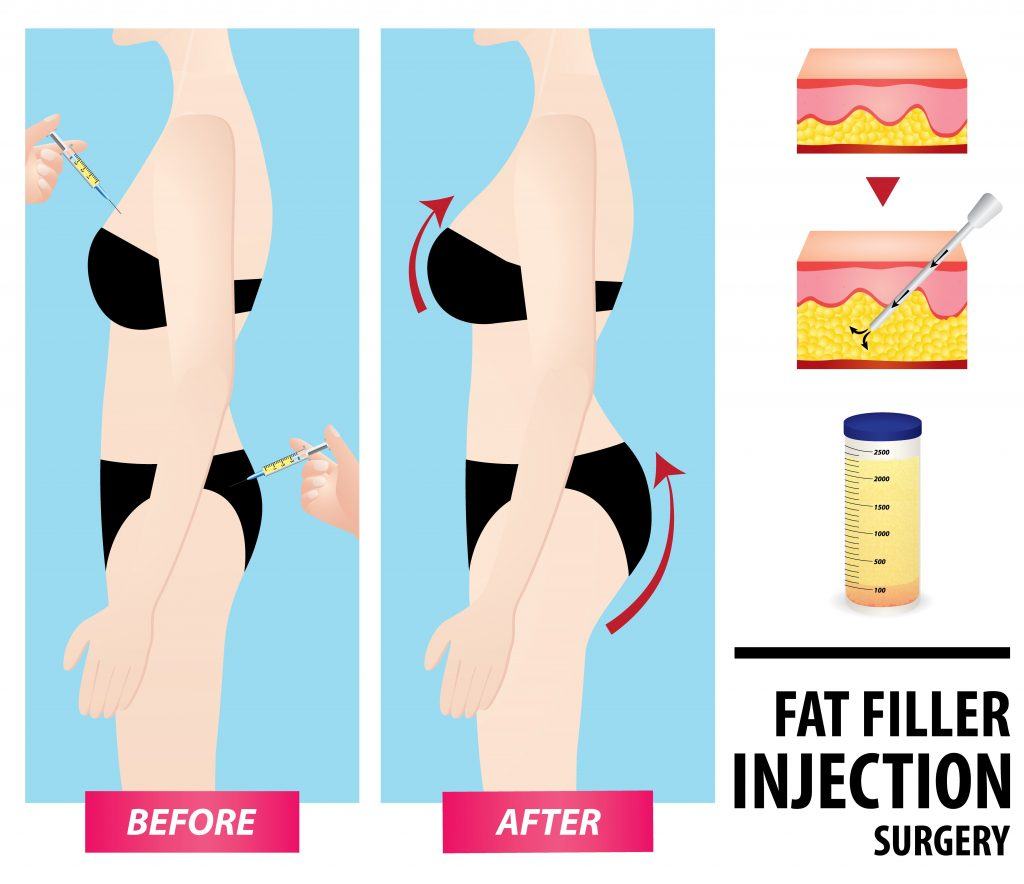 fat-graft-before-and-after-vector-illustration-img-blog-compressor