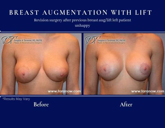 Before and after image of a young woman who previously had breast augmentation and minimal lift performed by another surgeon and unhappy with her results. Revision surgery was performed for a better outcome.